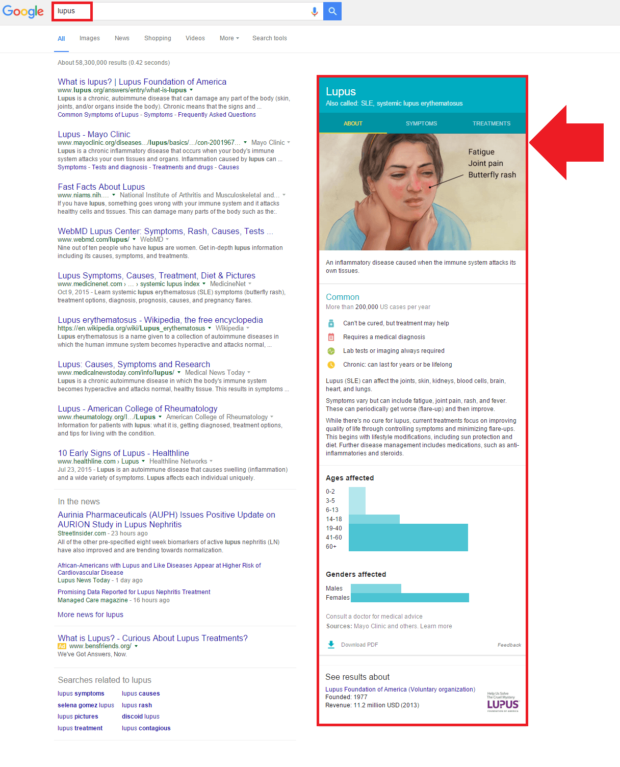 Exemple de Google May Treat dans le Knowledge Graph sur la requête Lupus